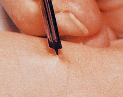 Handhabung der Lanzette beim Pricktest. Nach Auftragen der Allergene auf vorher markierte Hautstellen wird die Haut mit einer Lanzette, die eine Spitze von 1mm Länge aufweist, oberflächlich eingestochen.
