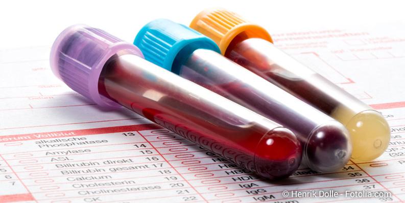 Test zur Erkennung von Lebensmittelallergien