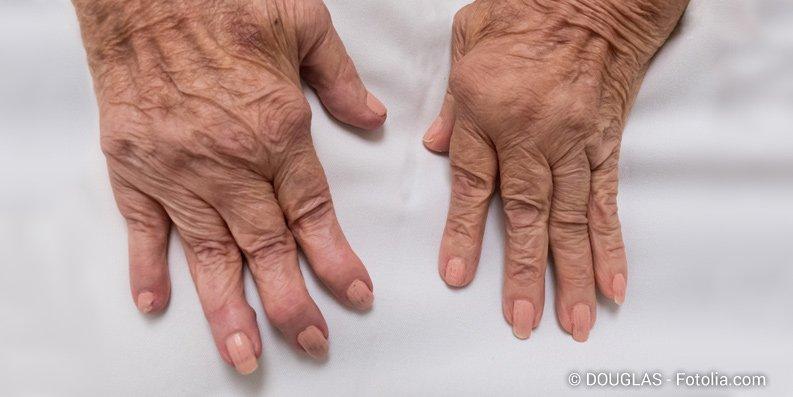 Gibt es eine Verbindung zwischen Asthma und rheumatoider Arthritis?
